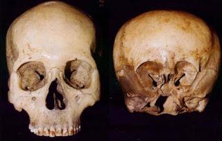starchild_skull